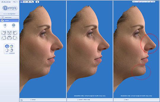 Rinoplastia antes e depois - simulador 3d