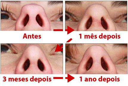 rinoplastia-cicatrizes-nariz