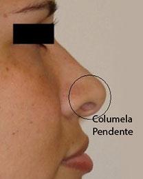 Cirurgia plastica no nariz para corrigir columela pendente