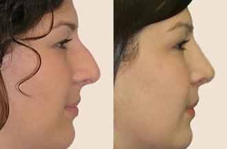 Resultados antes e depois da rinoplastia fechada