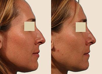 Fotos antes e depois da rinoplastia fechada