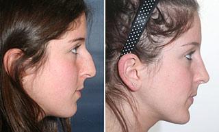 Cirurgia plastica no nariz - calombo, giba