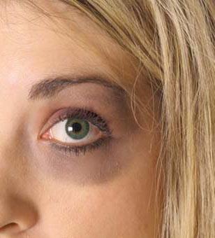 Olhos inchados e roxos após a rinoplastia - o que fazer