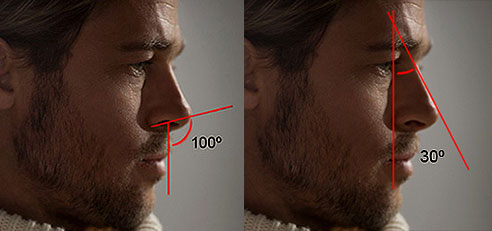 Rinoplastia para deixar o nariz arrebitado
