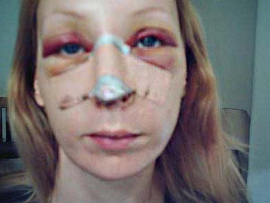 inchaço e hematomas no rosto após rinoplastia