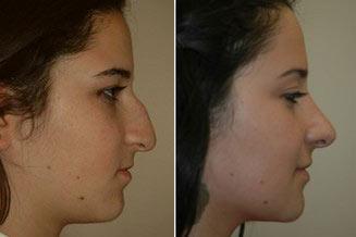 Rinoplastia aberta antes e depois