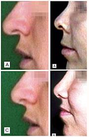 Cirurgia plastica no nariz para columela retraída