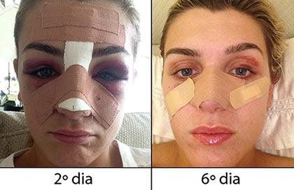 recuperação da rinoplastia: rosto muito inchaço e com hematomas