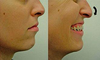 Rinoplastia para nariz com ponta caida