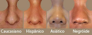 Cirurgia plastica no nariz - tipos de nariz