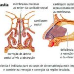 Cirurgia de Desvio de Septo – Septoplastia