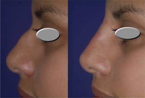 Fotos de bioplastia no nariz antes e depois