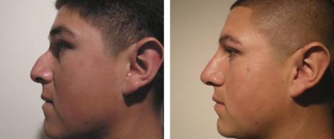 Bioplastia em nariz grande antes e depois