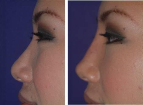 Bioplastia no nariz com metacril ou acido hialuronico